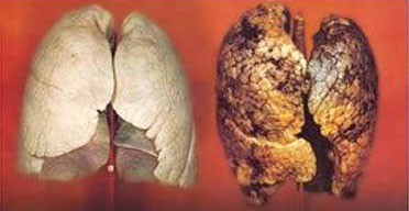 גמילה מעישון ונזקי העישון
